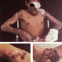 Chromomykose. Granulomatöse, blumenkohlartige Wucherungen im Bereich der Haut, z.T. an den Verlet...