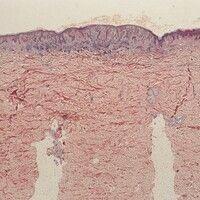 Compound-Naevus. Histologie: Übersichtsvergrößerung. Gut abgrenzbares Tumorkonvolut im oberen Kor...