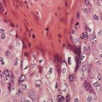Condylomata acuminata. Detailvergrößerung: Gruppierte Keratinozyten mit Halobildung um einen meis...