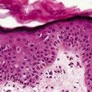 Bowenoide Papulose. Breites, akanthotisches Epithel mit Orthohyperkeratose. Über das gesamte Epit...