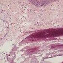 Calcinosis cutis. Leicht atrophisches Oberflächenepithel. Inmitten der Dermis scharf begrenzte, b...