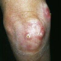Calcinosis dystrophica dissemnierte: gerötete Knoten mit schmerzhaften, zentralen Ulzerationen un...