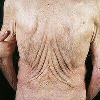 Cutis laxa. Schlaffe Atrophie bei einem 77 Jahre alten kachektischen Patienten. 20 kg Gewichtsabn...