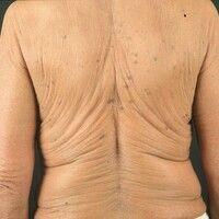 Cutis laxa. Erworbene Form bei 60-jähriger, ansonsten gesunder Frau. Hautveränderungen sind wahrs...