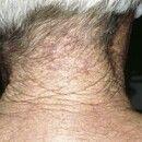 Cutis rhomboidalis nuchae. ÜberlappendeFaltenbildung im Nacken bei massiver Elastosis actinica b...