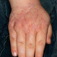 Cutis marmorata teleangiectatica congenita (localisata) 3 Jahre nach Erstaufnahme.Netzige, sympt...