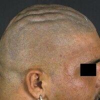 Cutis verticis gyrata. Seitliches Profil des Kapillitiums eines 26-jährigen Patienten (Bodybuilde...