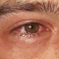 Conjunctivitis allergica. Vaskuläre Injektion und Schwellung der Konjunktiven mit erheblicher Lic...