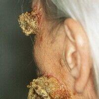 Cornu cutaneum. Stielartig das Hautniveau überragende stark hyperkeratotische Tumore im Bereich d...