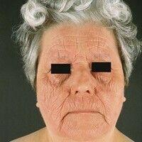 Dermatitis, chronische aktinische (Typ aktinisches Retikuloid). Großflächige, chronisch dynamisch...