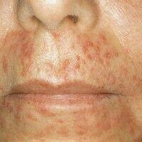 Dermatitis perioralis. Perioral lokalisierte, juckende, follikuläre, rote Papeln, Pusteln und Fle...