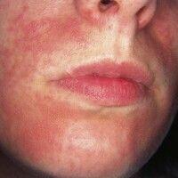 Dermatitis perioralis. Perioral lokalisierte, großflächige rote Flecken, kleinste follikuläre Blä...