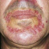 Dermatitis perioralis, granulomatöser Typ. Multiple, chronisch dynamische, seit 3 Monaten kontinu...