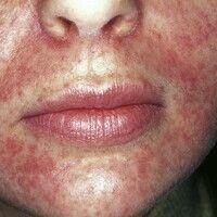 Dermatitis perioralis. Solitärer, chronisch aktiver, zentrofazial lokalisierter (weißer periorale...