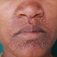 Dermatitis perioralis. Perioral lokalisierte, flächige Rötung (vergleiche die umgebende normale H...