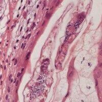 Demodex folliculorum. Demodex-Milbe in Talgdrüsenausführungsgang.