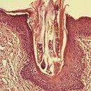 Demodex folliculorum. He-Schnitt, Übersicht: Demodex-Milbe im ektatischen Haarfollikel.