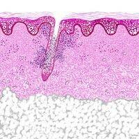 Dermatitis. Suppurative Follikulitis (Beispiel: Furunkel; Favus).
