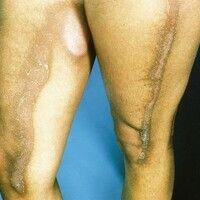 Dermatitis, Berloque-Dermatitis. Scharf begrenzte streifige, zentral abschuppende Hyperpigmentier...