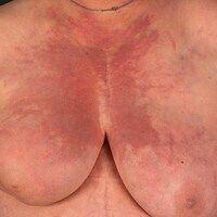 Dermatomyositis: Flächige, unscharf begrenztes, stellenweise zackig auslaufendesrot- livides Ery...