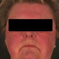 Dermatomyositis. Akut aufgetretenes, diffuses, sukkkulentes Erythem an Gesciht und Decolletee. Al...