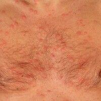 Dermatose, akute febrile neutrophile. Im Anschluss an hohes Fieber an Decolleté und Brustregion e...