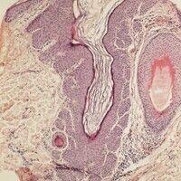 Dilated pore. Zystische Erweiterung des Infundibulums, bei deutlicher Akanthose des Follikelepith...