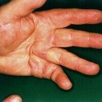 Dupuytrensche Kontraktur. Schweregrad IV einer Beugekontraktur von Ringfinger und kleinem Finger.