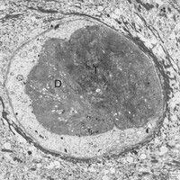 Dyskeratose. Elektronenmikroskopie: Dyskeratotische Zelle (D) im Epithelverband, Reste der Tonofi...