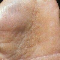 Dyskeratosis follicularis. Befall der Handflächen. In zentralen Bereichen des Handtellers flächen...