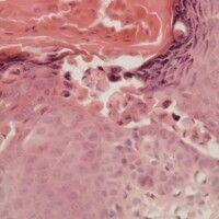 Dyskeratose. Links im Bild an der Epitheloberfläche sind dyskeratotische Zellen (Corps ronds) erk...