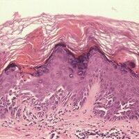 Dyskeratosis follicularis. Hyperplastische Epidermis mit dyskeratotischen Zellen sowie akantholyt...