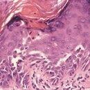 Dyskeratosis follicularis. Ausschnittsvergrößerung: Akantholytische Spaltbildung sowie deutlich n...