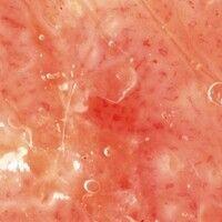 Dyskeratosis follicularis. Auflichtmikroskopie: Ausschnitt aus einer Läsion am Hals. Gelblich-wei...