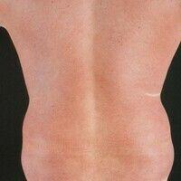 Dermatitis solaris. Flächiges, scharf begrenztes, schmerzendes Erythem am Rücken, 10 Stunden nach...