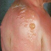 Bullöse Dermatitis solaris. Multiple, akute, seit 24 Std. bestehende, generalisierte, in UV-expon...