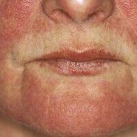 """Dermatomyositis. Chronisch stationäres, flächiges, rotes, """"heliotropes"""" Exanthem. Typisch ausgep..."""