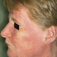 Dermatomyositis. Flächige, rot-livide Flecken im Gesicht einer 55-jährigen Frau mit periorbitaler...