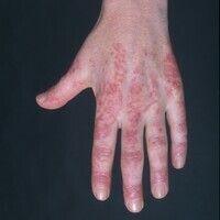 """Dermatomyositis (V-Zeichen): Charakteristische, die Diagnose """"Kollagenose"""" nahezu beweisende, kut..."""