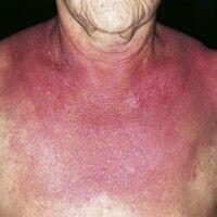 Dermatomyositis. Rot-violettes, gelegentlich juckendes, flächigesErythem im Decolleté und an den...