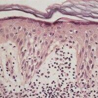 Ekzem. Akutes Ekzem. Spongiotische Dermatitis.