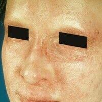 Dysplasie, anhidrotische ektodermale. Ichthyosiforme Hautveränderungen im Gesicht, Fehlen der Haa...