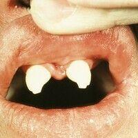 Dysplasie, anhidrotische ektodermale. Konisch-hypoplastische Zähne neben ausgedehnten Zahnlücken ...