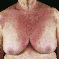 Ekzem, photoallergisches. 78 Jahre alte Patientin. Einnahme von Diuretika wegen Lymphödemen. Nach...