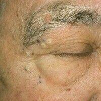 Elastoidosis cutanea nodularis et cystica. Multiple, chronisch-stationäre, bds. periorbital lokal...