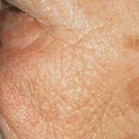Elastosis actinica. Tiefe rhomboide Falten, mit wulstigem Hautrelief, bei blass-gelblicher Hautfä...