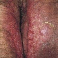 Enteritis regionalis, Hautveränderungen. Fistulierende, granulomatös-papillomatöse und abszediere...