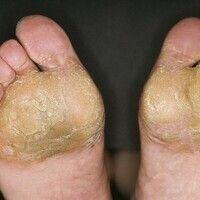 Ekzem, hyperkeratotisch-rhagadiformes Hand- und Fußekzem. Plattenartige Hyperkeratosen mit tiefen...