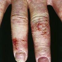 Ekzem, hyperkeratotisch-rhagadiformes Hand- und Fußekzem. Chronische, polytope, unscharf begrenzt...