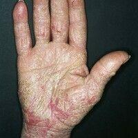 Ekzem, hyperkeratotisch-rhagadiformes Hand- und Fußekzem. Chronische (dynamisch wechselhafte), mu...
